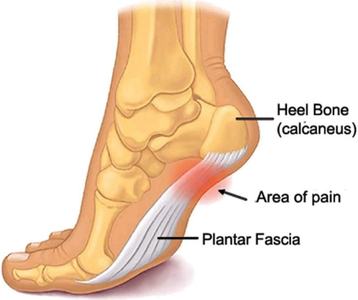 plantar-fasciitis-treatment-orthotics-insoles-inserts-1.jpg