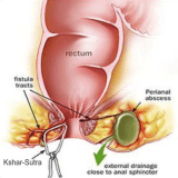 Ayurveda Clinic Fistula Treatment